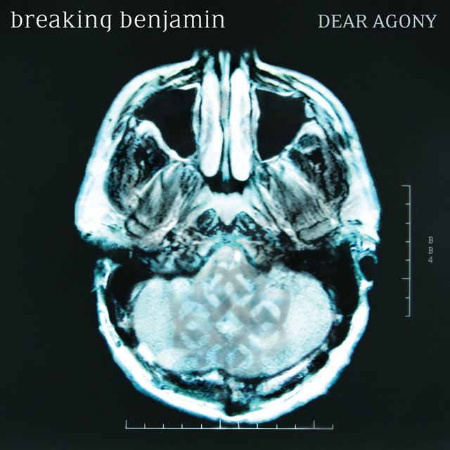 Dear Agony (Zune Exclusive)
