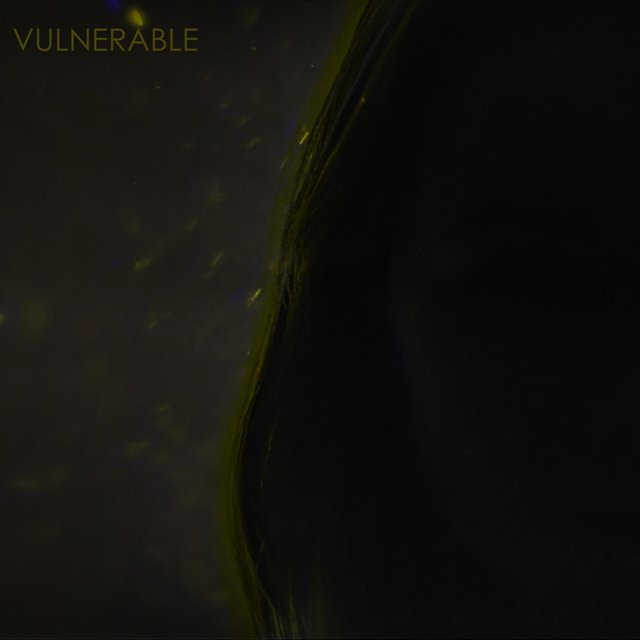 Vulnerable